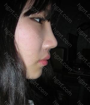 因为鼻子还是肿起来的~所以看起来比较夸张!