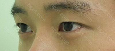 做切除鼻骨及软骨矫正鹰钩鼻+硅胶隆鼻+鼻翼软骨缝合整形手术前1