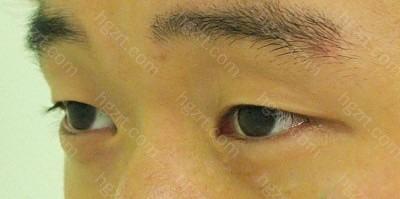 做眼皮下垂矫正和切开法双眼皮整形手术前2。