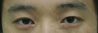 做眼皮下垂矫正和切开法双眼皮整形手术后。 手术前,眼睛看起来比较困的了,没精神的样子。 可是现在变得很有精神的!哈哈