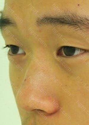 做切除鼻骨及软骨矫正鹰钩鼻+硅胶隆鼻+鼻翼软骨缝合整形手术后