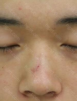 做切除鼻骨及软骨矫正鹰钩鼻+硅胶隆鼻+鼻翼软骨缝合整形手术前2