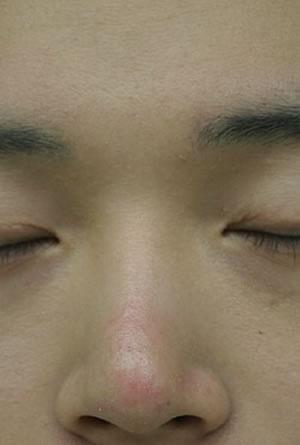 眼皮下垂矫正+切开法双眼皮+切除鼻骨及软骨矫正鹰钩鼻+硅胶隆鼻+鼻翼软骨案例