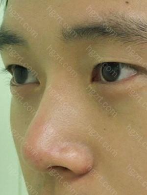 手术前,是个鹰钩鼻,鼻尖也不好看了! 手术后的变化好大啊! 非常满意的! 特别喜欢手术后的侧面的鼻子线条!