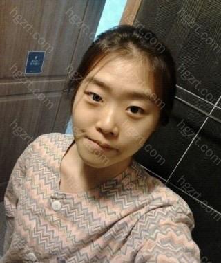 由于手术前对我的脸没有自信心,照片不多。 这是手术前天照的照片。  面部不对称非常严重吧。