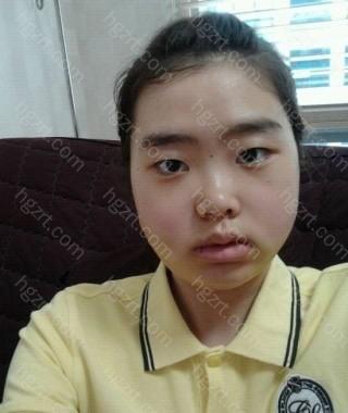 手术后第4天 对我来说脸肿的不算很严重,可能是医院提供事后管理的原因吧。