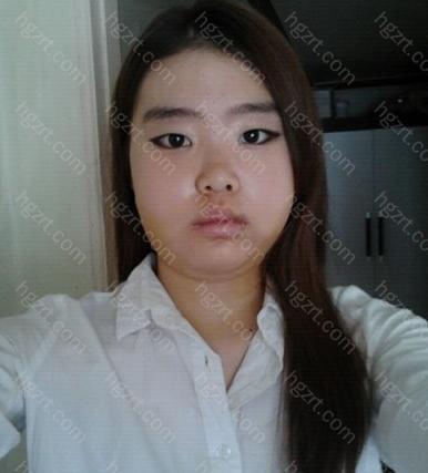 手术后第6天 手术后第1次化了妆,但脸还有消肿哦。