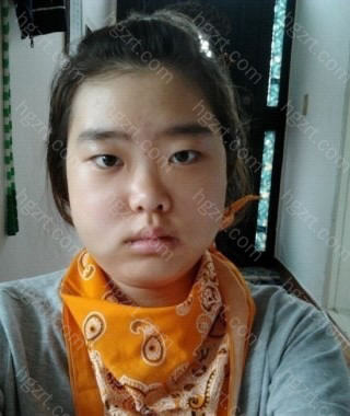 手术后第5天 由于下巴的感觉还没有回来,唾液一直流着,所以妈妈给我围上了围巾。