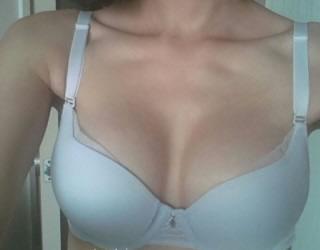 水滴形假体隆胸整形案例 触感很自然