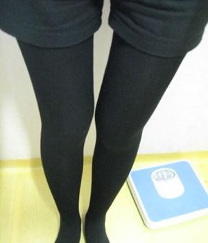 吸脂瘦大腿整形手术案例 腿细的感觉真好!