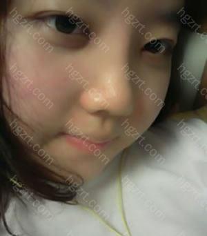 手术后 双眼皮和鼻子都看起来很自然的.