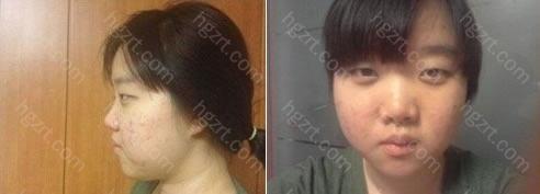 下面看一下手术前和手术后的对比照片!