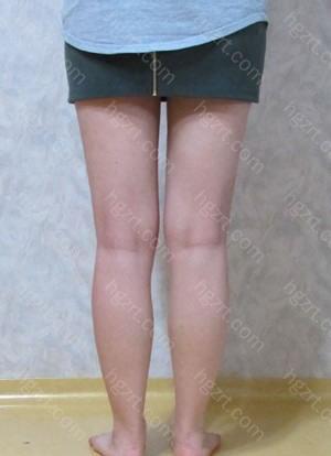 下面是手术后5个月的腿部背面图~