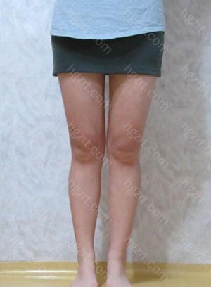 手术后5个月 手术前呢上身比较瘦所以大腿显得更胖,但是手术后与上身的比率差不多了。