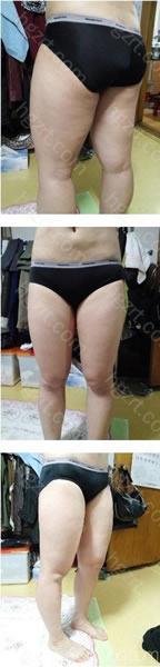 我4周前做了吸脂整形手术