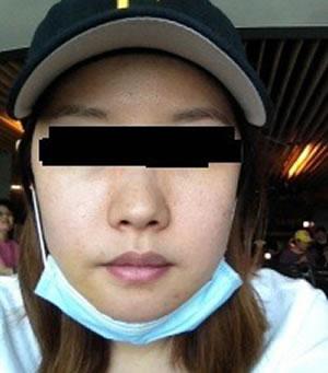 颧骨+下巴整形手术案例,我的脸型是不是变成瓜子脸呢?