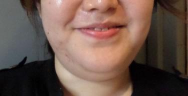 面部吸脂戴多久面罩,面部吸脂4个月后案例