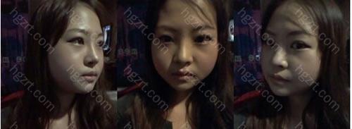 手术后第14天 手术后第1次化了妆,朋友说漂亮了很多。