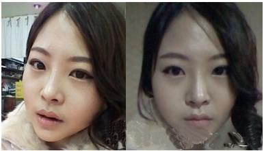 3D回转颧骨+棱角下巴矫正案例,喜欢现在的脸型