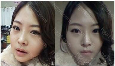 手术后第40天  手术后终于有了V-Line瓜子脸。