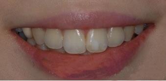 Laminate牙齿整形手术案例,现在每天都要笑
