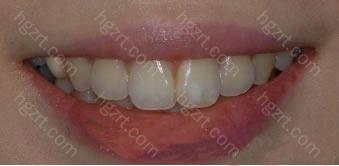 所以决定做Laminate牙齿整形手术