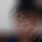 面部下垂提升术是什么,能改变我的面相吗