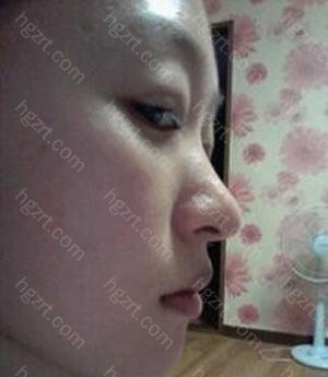 但是医生建议如果在额头和下巴植入脂肪的话从侧面看与鼻子连起来的线条会很漂亮的