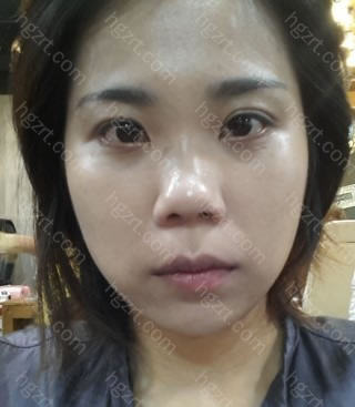 我做了开外眼角+外眼角下拉+鼻中隔手术+切开鼻孔法鼻翼缩小手术