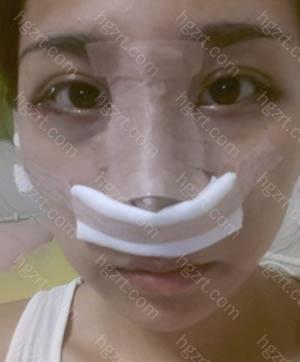 手术当天。 术后感觉呼吸困难和眼部有点酸痛。
