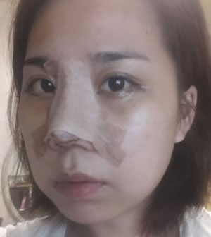 开外眼角+外眼角下拉+鼻中隔手术+切开鼻孔法鼻翼缩小案例
