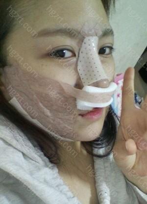 手术后第2天 手术后最痛苦的只不能用鼻子呼吸。