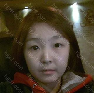 4个周前我做了埋线法双眼皮+硅胶隆鼻+脸部自体脂肪移植整形