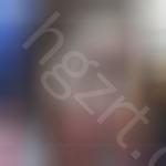 埋线法双眼皮+硅胶隆鼻+脸部自体脂肪移植整形案例