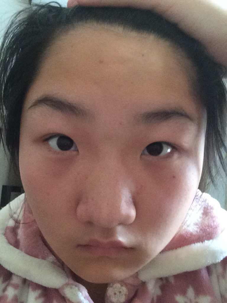 内眦赘皮切除术会不会给眼睛留疤,可以和双眼皮一起做吗