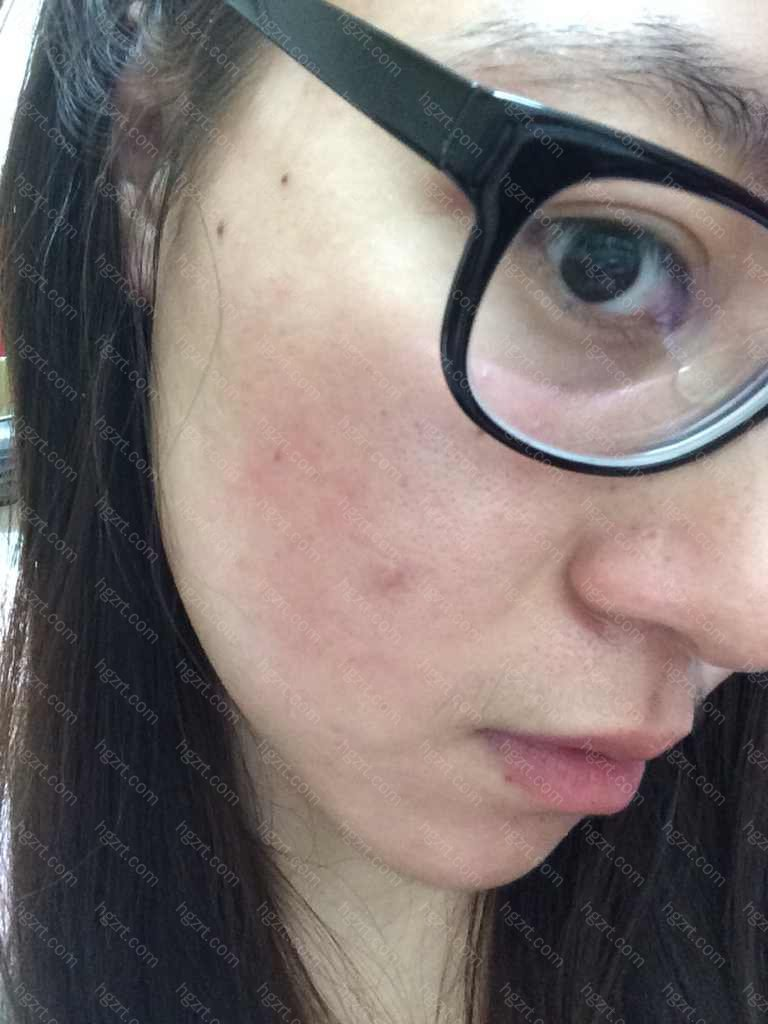 敏感皮肤可以水光针吗