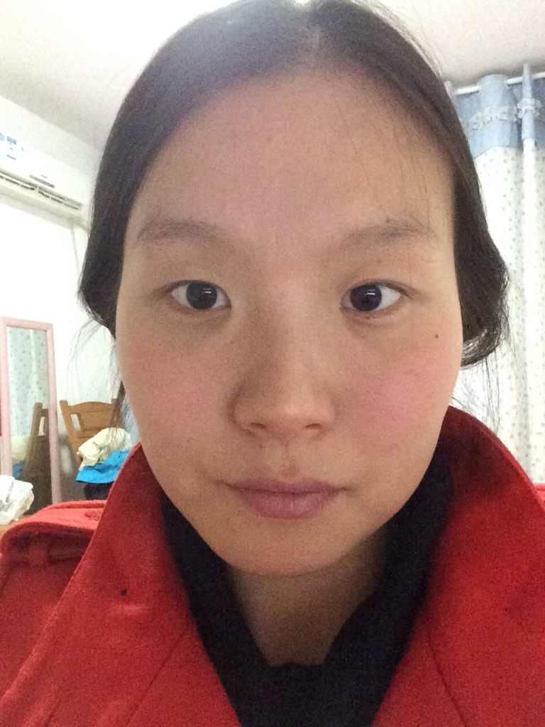 开内眼角双眼皮多少钱,想做双眼皮+内眼角 请问好的专科医院有哪些 费用大概多少 我今年24岁 根据我的眼皮情况 采用哪种双眼皮方式比较合适?