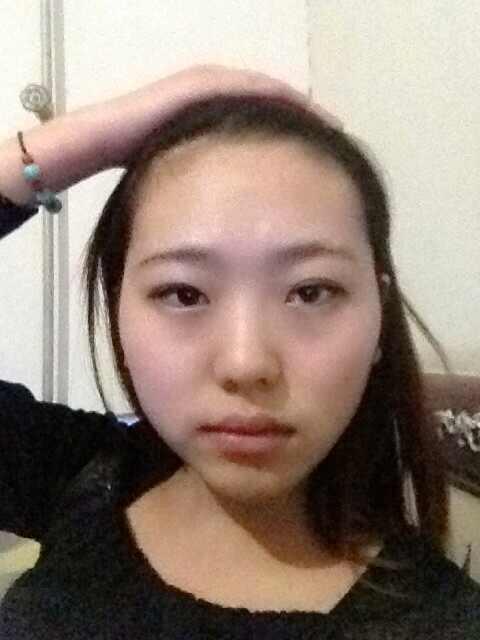 做双眼皮需要去眼泡肿吗,看看我的眼睛应该怎么整