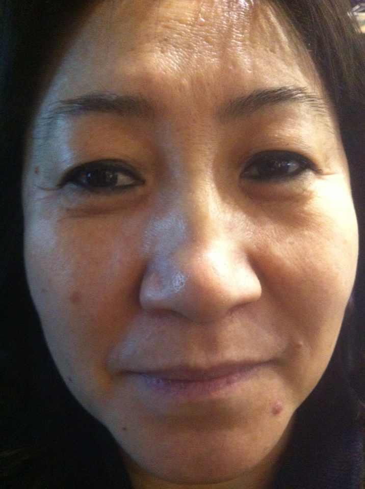 prp自体血清嫩肤的效果可以保持多长时间,皮肤太不好,显的很老气