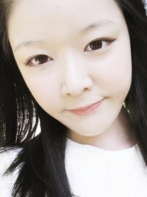 脸部脂肪移植+misko隆鼻七个月案例分享