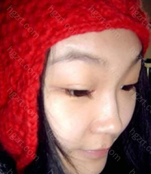 这次在鼻子注射玻尿酸隆鼻之前做了埋线法双眼皮整形手术