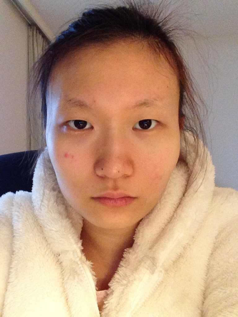 植眉好不好,我想今年暑假去韩国割双眼皮开内眼角植眉打玻尿酸隆鼻还有抽脂 请问去哪个医院比较好啊 价格大概都是多少啊