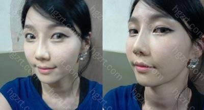 手术后3周 哇~鼻子线条真漂亮啊!