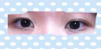 眼睛内双不对称怎么办,是不是要做眼部的综合整形手术