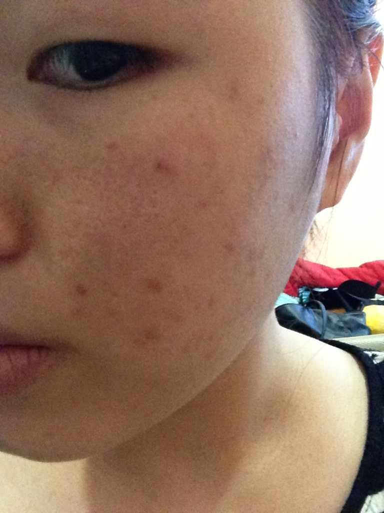 那种激光祛斑效果好,请问我的皮肤要做哪种激光比较适合?如果做激光是不是语言几个疗程?做完要多久?、