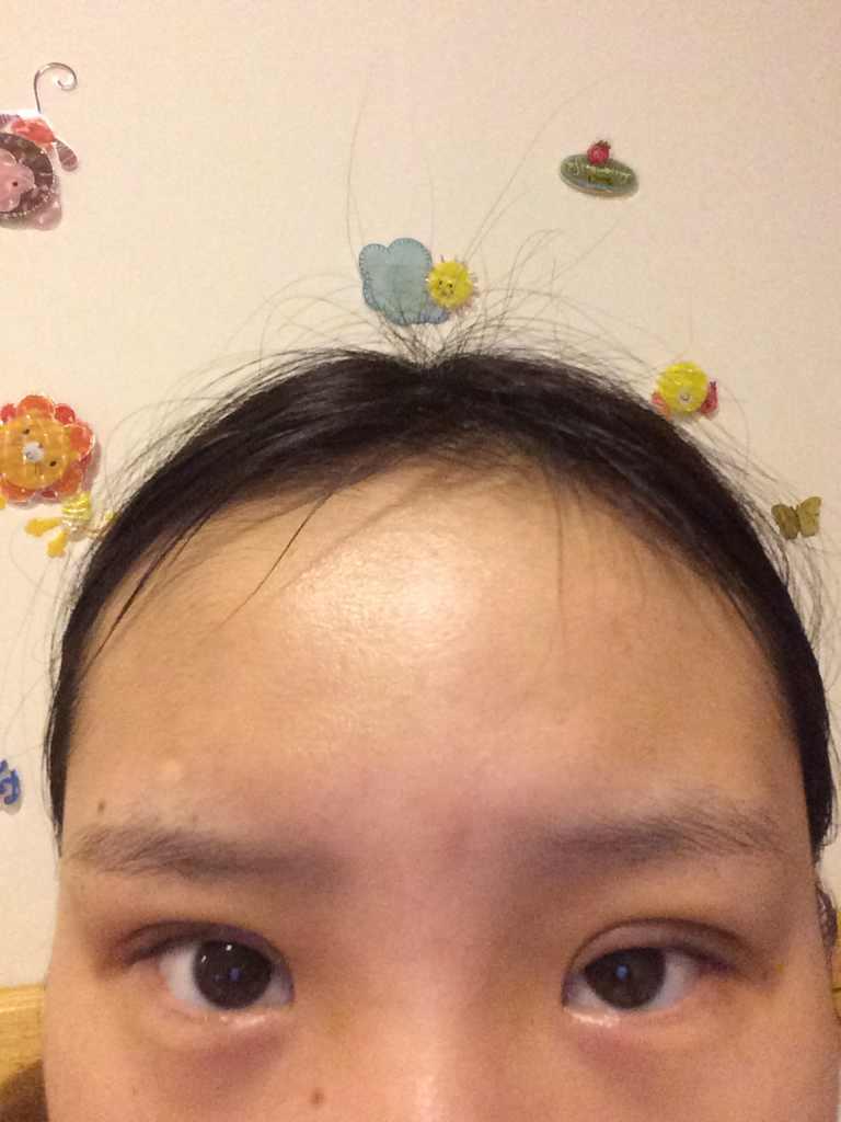韩式三点定位双眼皮是长期的吗,刚做了这个,但是恢复速度不一样