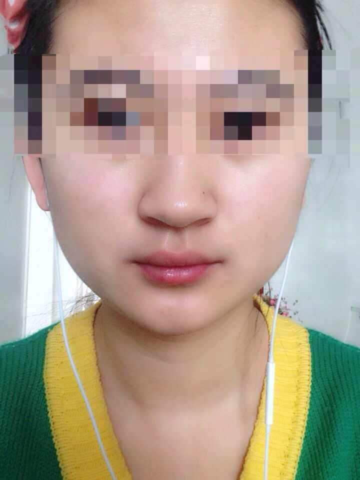 鼻头鼻翼肥大怎么办,还有我的脸型怎么样才能瘦下来