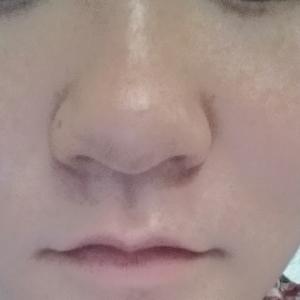 蒜头鼻矫正多少钱,请帮我看看我的鼻子需要怎样得手术?大概要多少钱?需要在韩国呆多久?