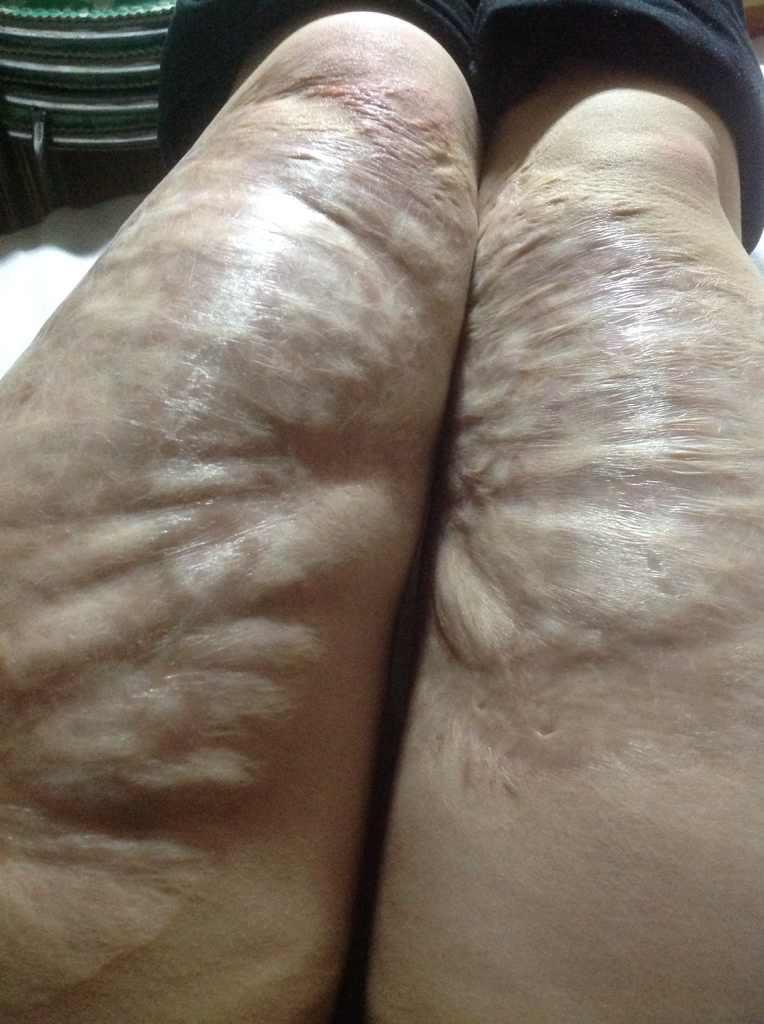 皮肤烫伤疤痕怎么修复,我双腿 大腿表面在八岁时被开水烫伤 据报告显示甲级烫伤 我现在22岁 请问可以治疗吗 费用大概是多少