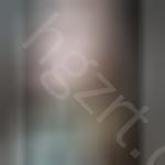 玻尿酸注射隆鼻+玻尿酸垫下巴整形手术1个月后案例